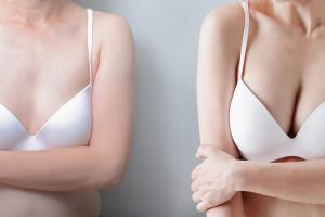 sieviete pirms un pēc krūšu palielināšanas